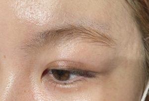 9E09F6CF 5219 4E39 A737 2883DEA5EE3F 300x203 - 脱色している眉